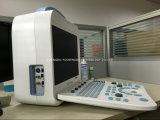 セリウムの公認の診断システム3D/4Dカラードップラー超音波