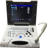 un conjunto entero del color de diagnóstico Doppler Ew-C8 del explorador del ultrasonido de la computadora portátil con 4 diversas puntas de prueba para el diagnóstico humano