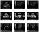 가득 차있는 디지털 PC 기반 의학 진단 초음파 스캐너
