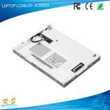 """el panel G 190 de 19 """" Auo LCD eg. 01 V1 para la máquina industrial y la máquina médica"""
