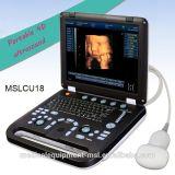 Varredor Pseudo portátil Mslcu18A do ultra-som de Doppler da cor 4D