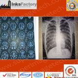 Pellicole del X-Cassetto di Medica/Cr dell'ospedale, Dott., MRI, CT, pellicole di Dsa