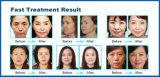 peau thermique de 20MHz rf serrant le matériel (FDA d'OIN de la CE)