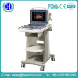 Huc5 Digital 3D completo escáner en color Doppler Ultrasonido portátil