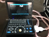 Smartbook Ultrasound Scanner für Medical Use (TY-6868A-1)