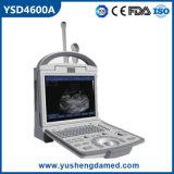Beweglicher B/W Ultraschall-Scanner der medizinischen Krankenhaus-Gerät-für Menschen