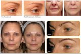 Equipamento antienvelhecimento do levantamento de face Hifu da remoção do enrugamento de Hifu do ultra-som eficaz