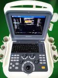 O varredor do ultra-som de Doppler da cor de Cansonic com vária ponta de prova escolhe