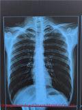 Prix bas ! ! Film radiographique bleu médical