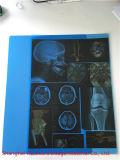 Rayos X azul de la película, película de la impresión láser