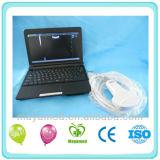 Ultraschall-Scanner des Laptop-My-A007