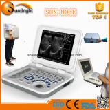 Explorador portable de calidad superior del ultrasonido del precio bajo de la mini computadora portátil de Sun-806e