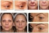 Anti-Aging Haut-Verjüngungs-Gesichts-Anhebenknicken-Abbau-Schönheits-Maschine Hifu