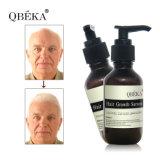 Natural ningún suero de restauración del crecimiento del pelo del suero de la reparación del pelo de Qbeka de la irritación