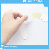 피부 방벽의 착용 시간을 증가시키는 Ostomy 배려 인발이 찍힌 반지