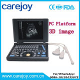 Laptop-Ultraschall-Maschine/Scanner Ultrasounic Diagnosesystem PC Plattform Rus-9000e2 mit Cer Bescheinigung-Maggie