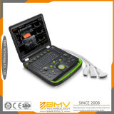 Bcu60 Full Digital Portable Doppler Color Ultrassom