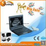 Machine d'ultrason d'ordinateur portatif/Usg/B ultrasonique