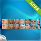 Cuidado de pele da beleza do RF da radiofrequência de ADSS