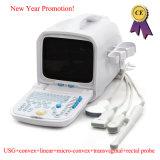 Scanner van de Ultrasone klank van 10.4 Duim de Volledige Digitale Draagbare (PC) - rus-9000A-Fanny