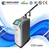 Ricostruzione Exfoliative frazionaria della pelle del laser del CO2 (V-8)