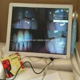 17inch VGA+Video+USB +Monitorのホールダーが付いている白いモニタ+DentalのIntraoralカメラ