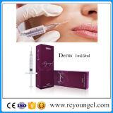 Remplissage cutané acide de Hyaluronate de sodium d'injection