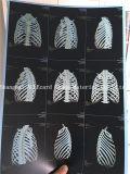Película do laser do animal de estimação da película de raio X da impressão