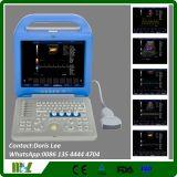 A máquina a mais barata do ultra-som de Doppler picowatt da cor