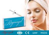 La rimozione dell'occhio spiegazza il riempitore acido di Reyoungel Hyaluronate Derma