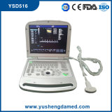 Digital Laptop 4D Color Doppler Ultrasound Machine Ysd516