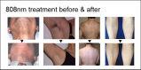 Laser permanente do diodo da remoção do cabelo do profissional 808nm