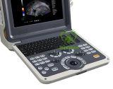 Di My-A035A macchina portatile di ultrasuono dello scanner di Doppler B Ultasound di colore in pieno Digitahi