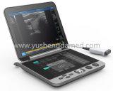 Explorador médico portable aprobado del ultrasonido de Ce/ISO