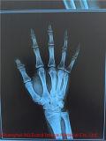 Baixo preço! ! Película de raio X azul médica