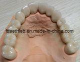 Мост протеза Fix зубоврачебный от лаборатории Китая зубоврачебной