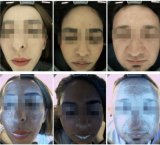 Портативная сторона испытывая лицевой анализ кожи для обработки лазера