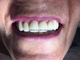 Pontes dentais estéticas elevadas do zircónio do laboratório dental de China