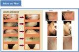 Remoção longa médica da veia da aranha da remoção do cabelo do laser do pulso