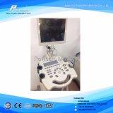 Varredor portátil do ultra-som do equipamento médico B/W do hospital para o ser humano (WHY21)