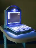 Одобренный CE ультразвуков компьтер-книжки цифров Handheld портативный (YSD1208)