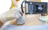 Scanner diagnostique tenu dans la main Ew-B10 d'ultrason avec la sonde convexe C3.5r60 pour l'usage humain