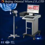 Tipo elettronico Colposcope dell'endoscopio di uso semplice portatile di Digitahi