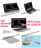 "Hot Sale 12 ""Ultrathin Notebook Ultrasound Scanner"