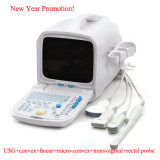 Full Digital Portable PC Platform Ultrasound Scanner with 3.5 MHz Convex Probe (RUS - 9000A)