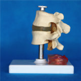 Modèle lombaire humain de soins médicaux de disque d'Intervertebra (R020708)