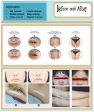 Elight IPL Laser-Haar-Abbau-Tätowierung-Abbau-Schönheits-Salon-Gerät