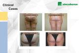 A máquina a mais nova da remoção do Cellulite da forma de Deisgned Kuma, máquina gorda da remoção, aprovaçã0 do CE