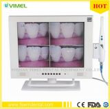 Dental Digital Intraoral Camera Imaging 15inch LCD Monitor Sony CCD USB Video