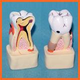 Modèle dentaire de démonstration de pathologie pour la transmission de Docteur-Patient
